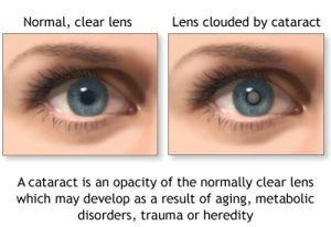 Live Longer with Cataract Surgery?