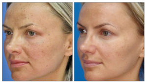 Stockton laser skin treatments - ipl before and after photo