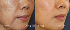 Stockton laser skin treatments - enlighten laser for skin discoloration