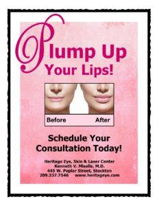 Volumizing Lip Fillers Stockton