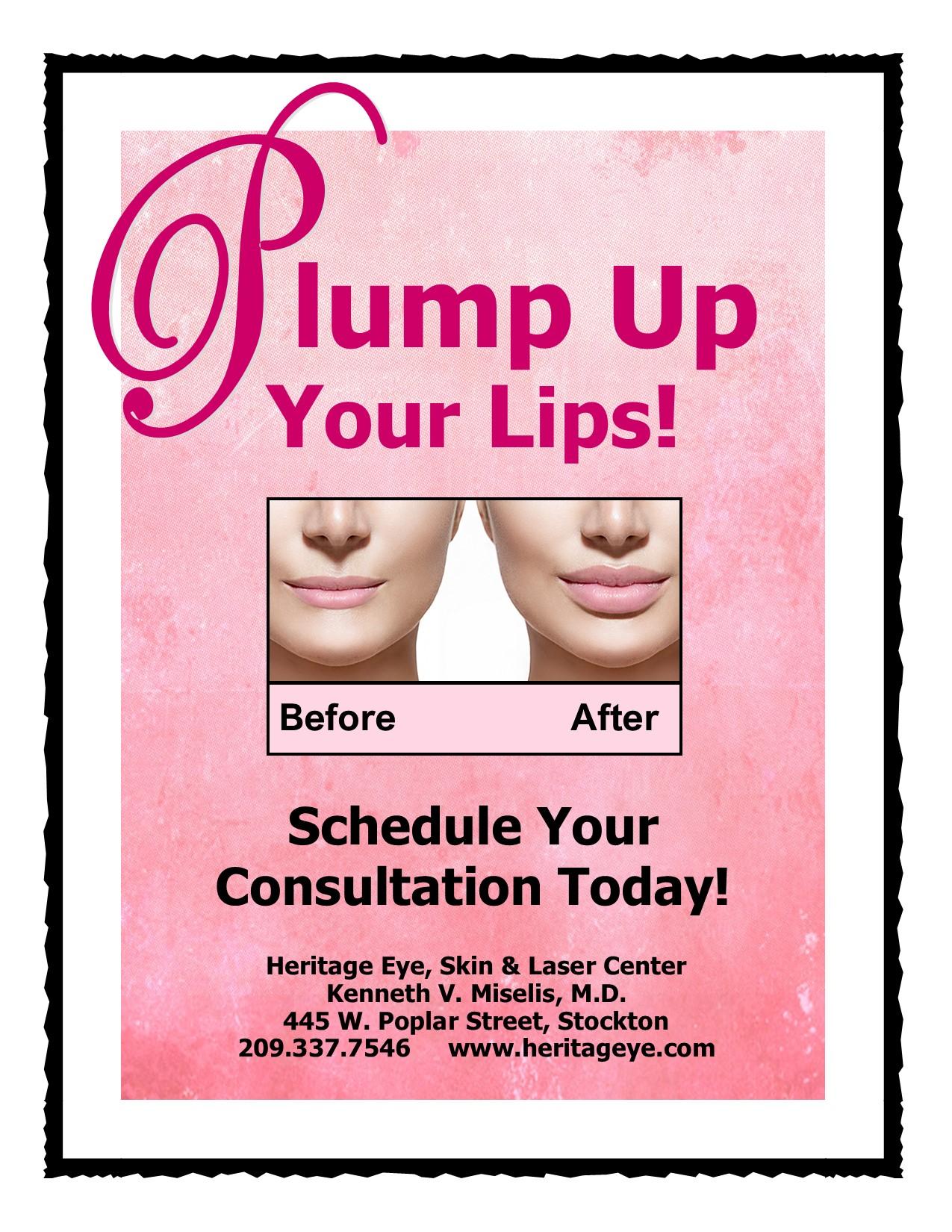 Volumizing Lip Fillers at Heritage Eye, Skin & Laser Center